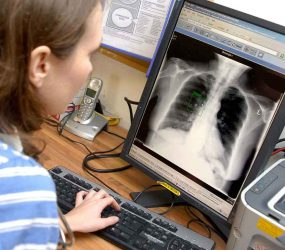 chest x-ray on screen being viewed by staff member