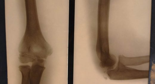 x-ray of elbow straight and bent