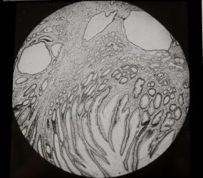 black and white image of tissue sample viewed under microscope