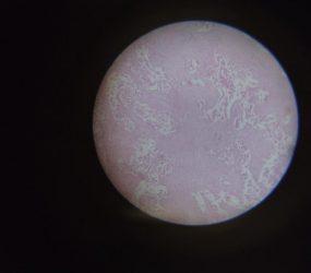 microscope view of tissue sample on slide