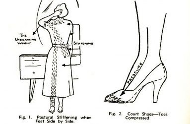 line drawing showing woman wearing heels standing with feet together, arrows highlight areas of strain