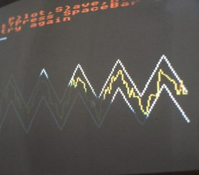bulky monitor TV screen showing very simple graphic zig zag, which patient has electronically traced alongside